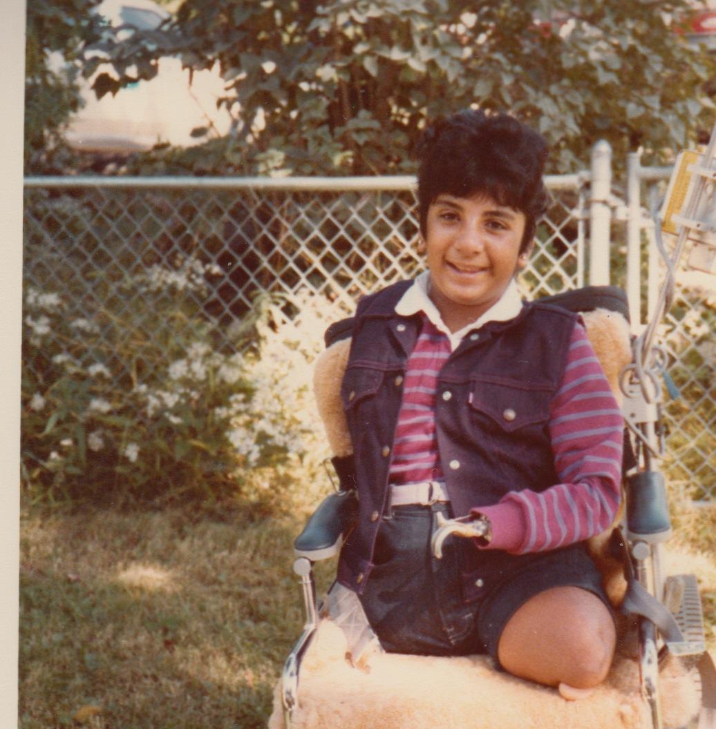 73 - lisa prosthetic age 10